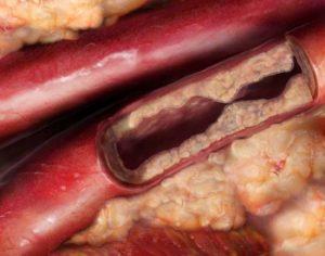 colesterolo farmaci