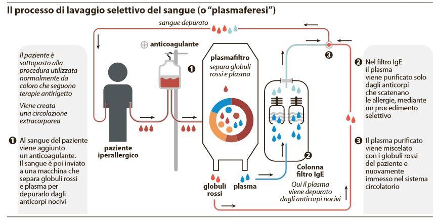 plasmaferesi lavaggio sangue