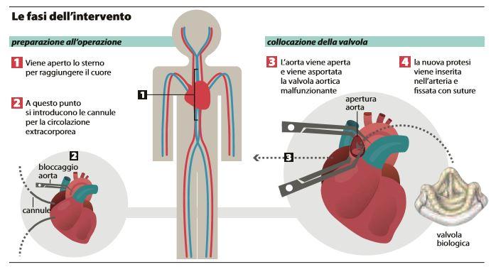 silvio berlusconi valvola aortica 1