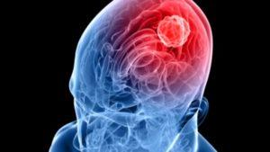 meningite sintomi lazio toscana