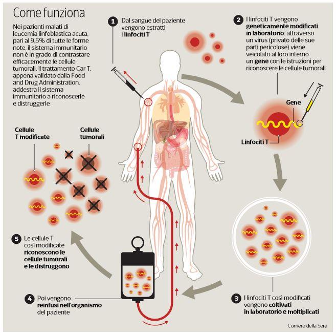 kymriah leucemia linfoblastica acuta